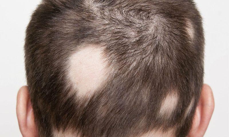 Alopecia areata enfermedades del cuero cabelludo dermobogdermobog - En que meses se cae mas el pelo ...